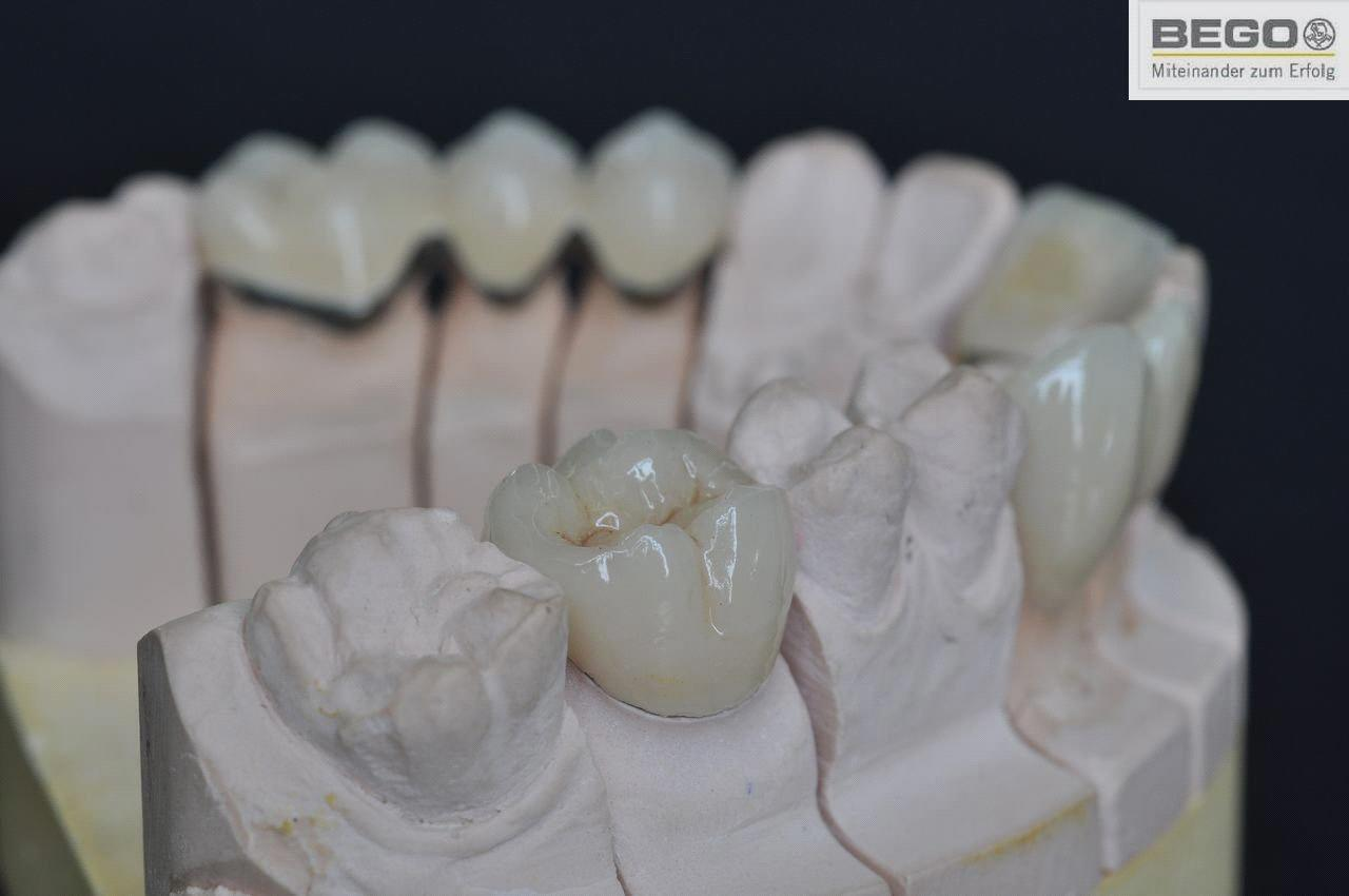 Download image Pfm Dental Crown And Bridge PC, Android, iPhone and