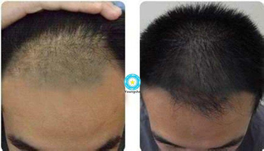 High Purity Cosmetic Peptide Cas 155206001 Bimatoprost