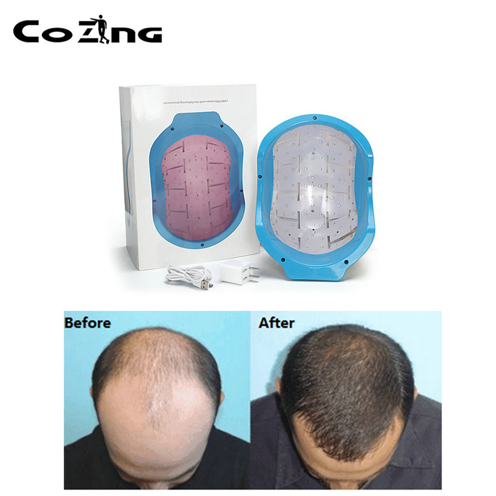 Portable Bald laser Head Hair Growth cold laser treatment helmet for home remedy