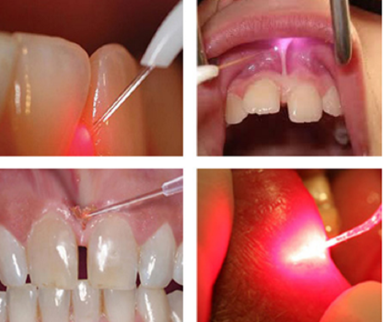 Berylas Multiple Wavelengths Soft Tissue Dental Diode Laser
