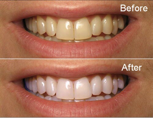 Hightech professional tooth whitening equipment protects teeth health laser teeth whitening