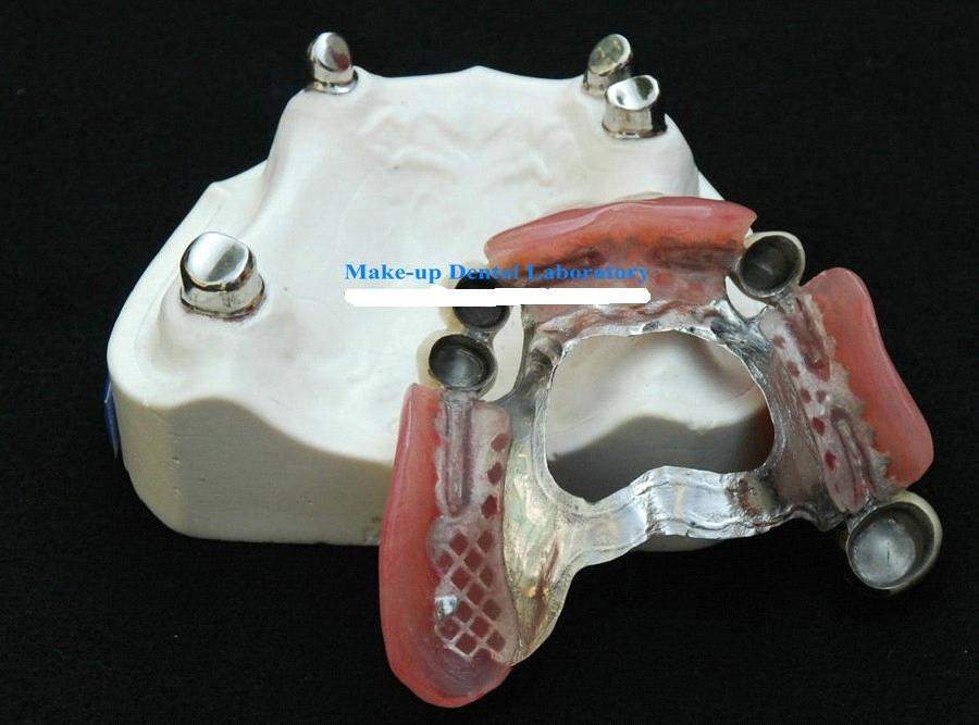 Telescope Crown Denture Tk 1 Attachment Purchasing