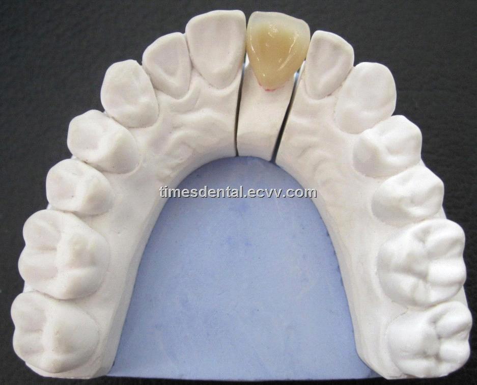 Dental Pfm Porcelain Fused To Metal Crown Ceramic Crown