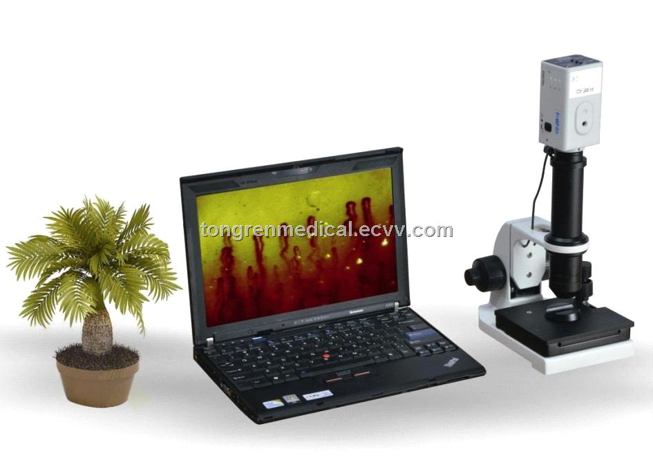IK Laptop Microcirculation Analyzer (TR8000B)